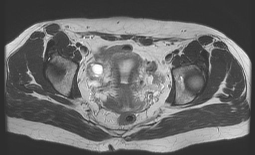 Imaging Anatomy: interactive PACS-like atlas of radiological anatomy